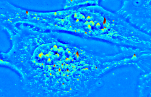 3D surface projection of live U-2 OS cell from a SLIM QPI image