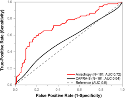SLIM data for Anisotropy as seen plotted with CAPRA-S to predict recurrence rates for prostate cancer.